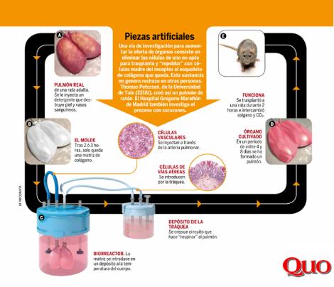 Infografía que muestra el proceso de creación de pulmones artificiales.